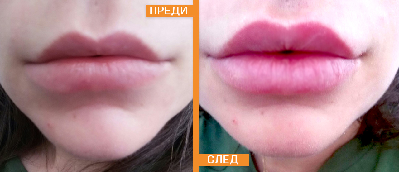 Keyhole lip Augmentation before and after